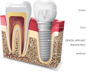 implant to replace one tooth