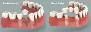Puente vs implante dental
