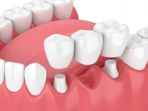 what is a tooth bridge