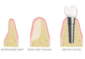 bone graft for implant