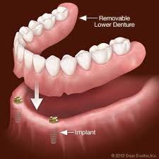 regular denture vs implant denture