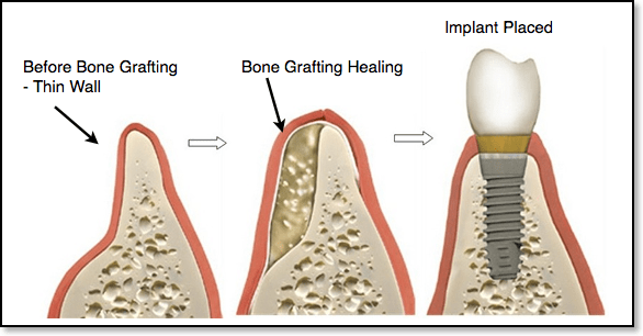 Is Bone Graft Needed For Implants Tooth Removal Dentist Maryland