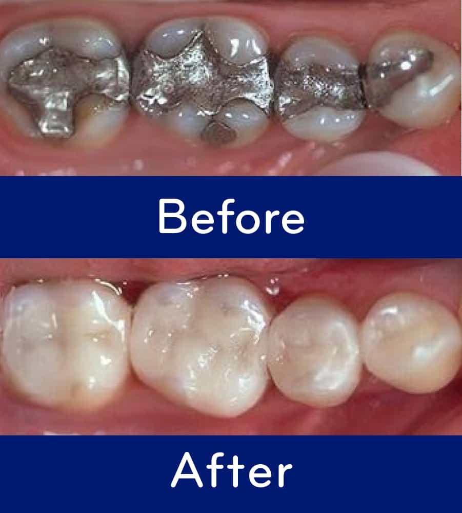 composite vs amalgam fillings
