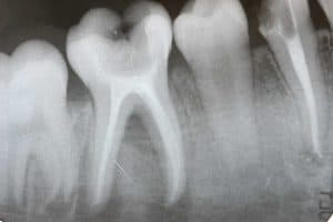 root canal removal biological dentist