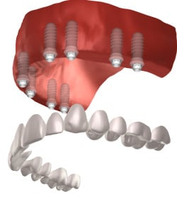 full mouth of dental implants
