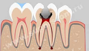implante de endodoncia vs.