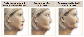 dental implants healing time line
