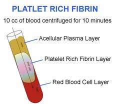 PRF platelet rich fibrin with dental implant surgery
