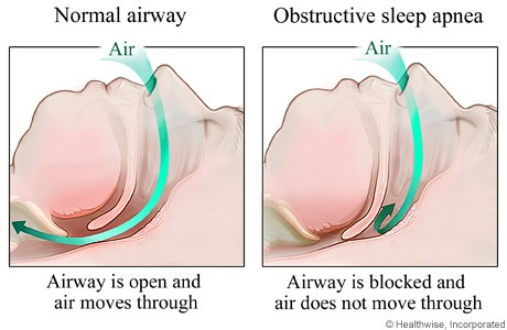sleep apnea tmj link