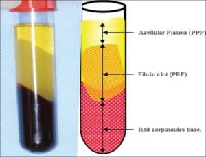 platelet rich fibrin dental implants