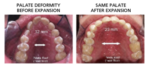 before and after palatal expansion