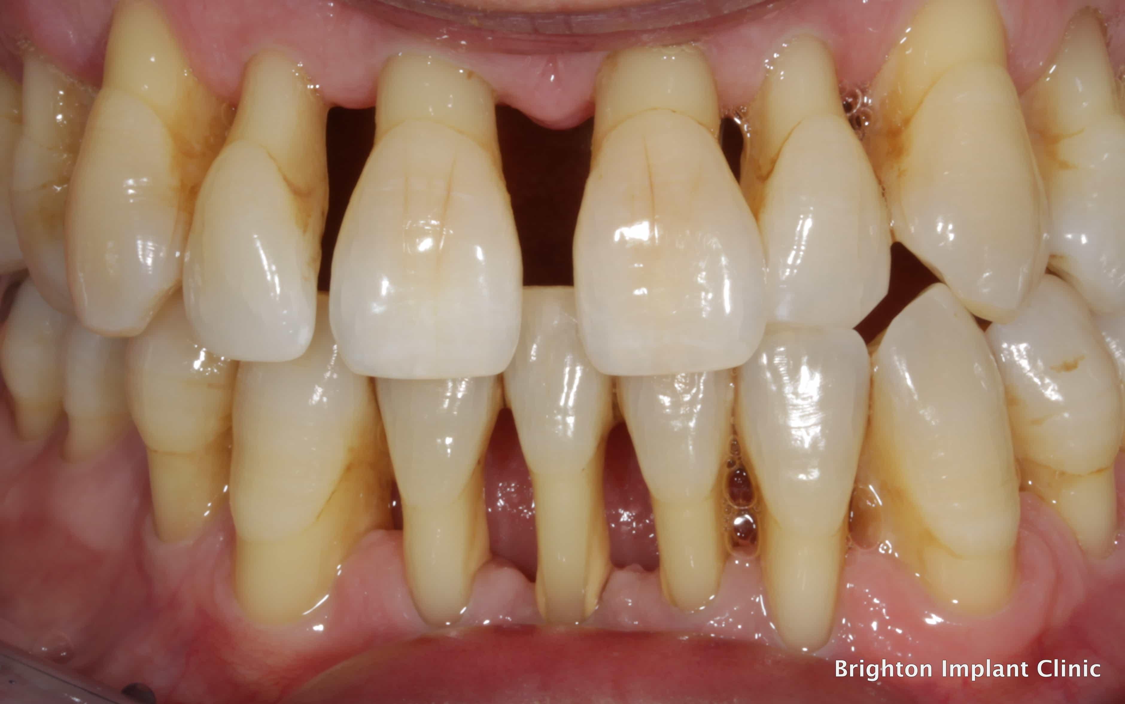 teeth cavities with decay