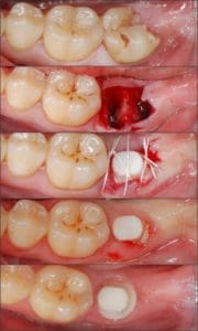 dental implant recovery period