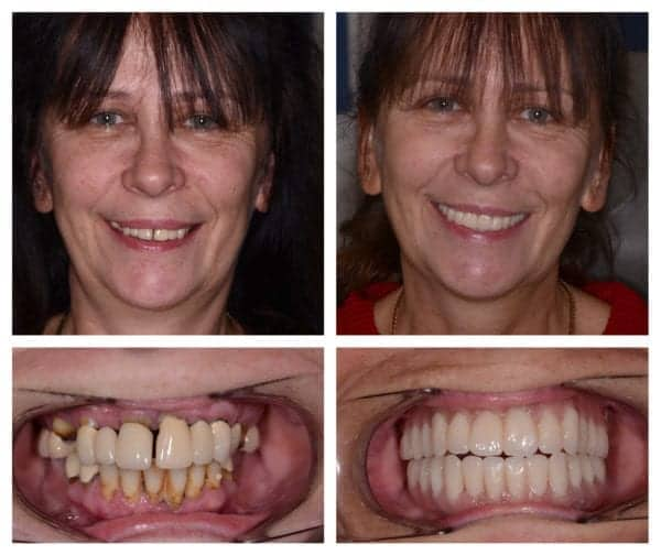 when to replace all teeth with permanent implants