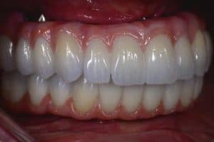 all on 4 implant teeth