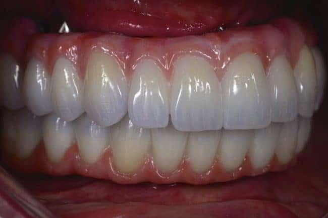 all on 4 zirconia teeth upgrade