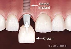 dental implant healing time