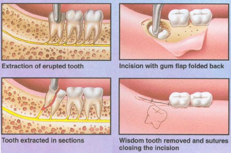 wisdom teeth removal necessary