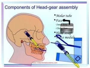 braces cause TMJ-TMD