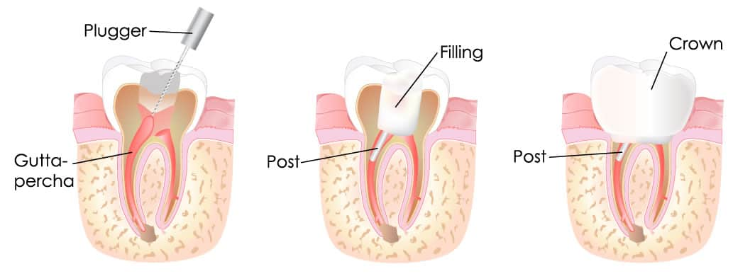 How To Properly Remove Root Canal Teeth Root Cause Netflix