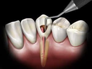 root canal treatment or removal