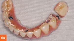 dentadura híbrida