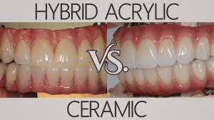 zirconia vs acrylic plastic full implant teeth