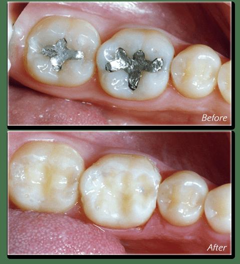 amalgam mercury filling removal