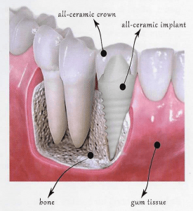 biological dental implants