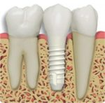 Zirconia implante dentista