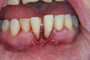 absceso dental de emergencia