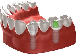 implant dental bridge