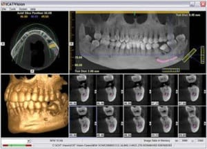 holistic root canal removal