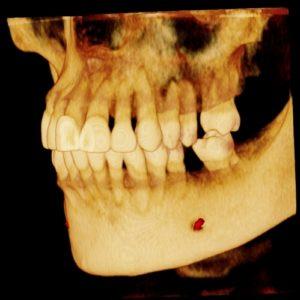 cirujano oral holístico