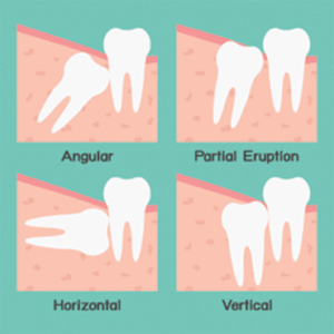 wisdom tooth extraction types