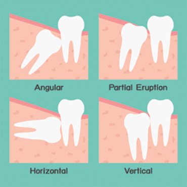 wisdom teeth removal burtonsville chevy chase