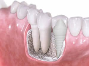 pain after dental implant surgery normal