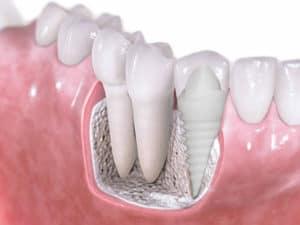 implante de cerámica dentista