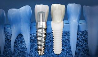 zirconia vs titanium dental implants