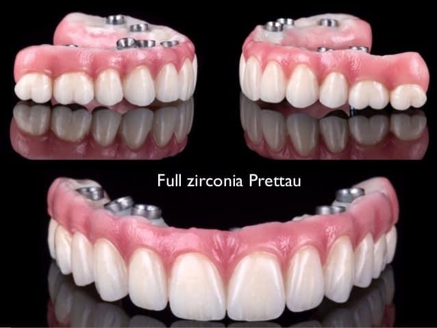 Full Dental Implants Cost - All on 4 vs Snap on Dentures