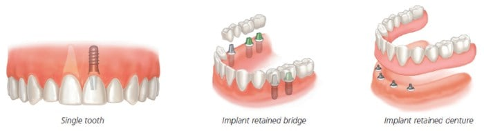 full mouth dental implant options