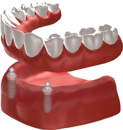 snap on denture cost