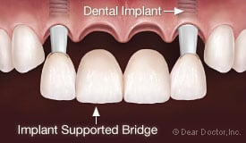 front teeth implant bridge