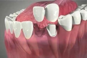 puente del implante
