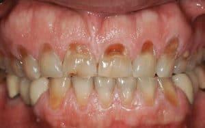 clenching teeth causes cavities