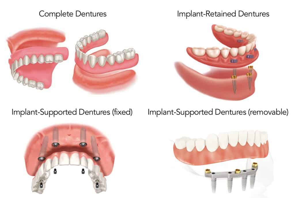 implant dentures vs all on 4