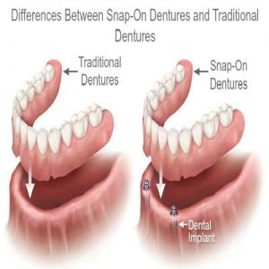 dentures vs snap on dentures