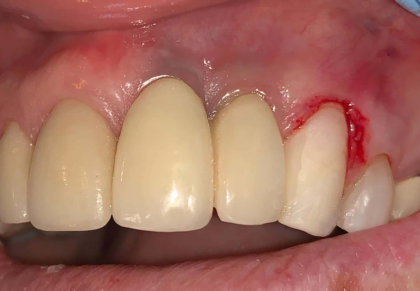 zirconia implants