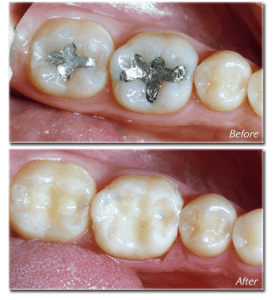 are silver amalgam fillings safe