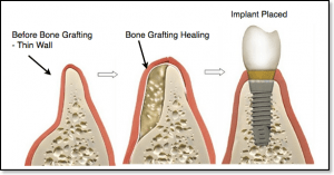 necessary implant bone graft